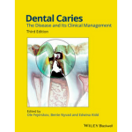 Dental Caries: The Disease and Its Clinical Management. Kurssikirja lääketieteelliseen.