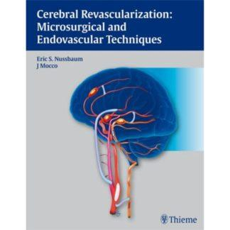 Cerebral Revascularization: Microsurgical and Endovascular Techniques 9781604062632