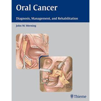 ORAL CANCER 9783131358110