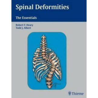 SPINAL DEFORMITIES - THE ESSENTIALS 9783131441218